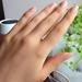 二枚爪、スプーンネイルetc.ネイルトラブルの症状について