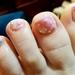 こんな爪じゃネイルが楽しめない!足の小指の爪が小さくなる原因とその改善法