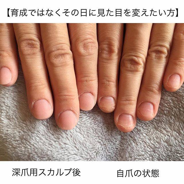 深爪用スカルプをつかえば、このように見違える美しい指先...