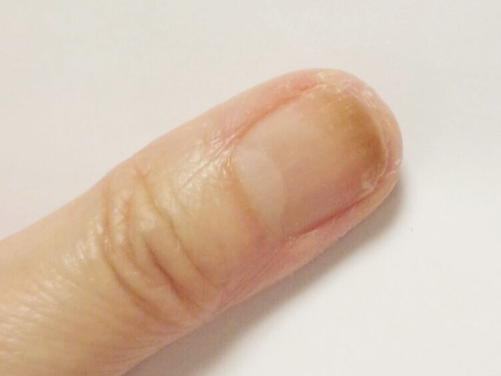 爪がカビで緑に!ジェルネイルで起きるリスク「グリーンネイル」の原因と対処法