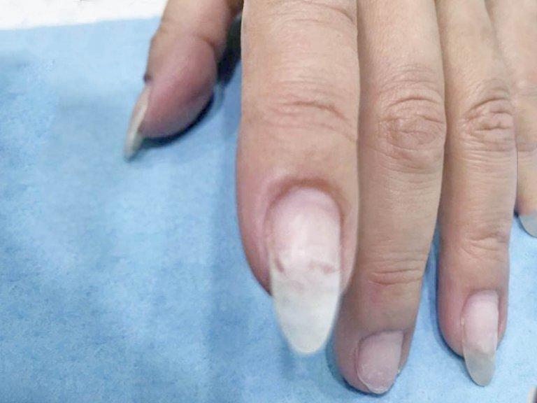 ネイリストがおしえる、爪の割れたときの応急処置の方法